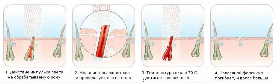 Всё о процедуре лазерной эпиляции
